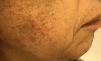 Un caso particolare di Acne del viso per la continua applicazione di una crema contente cortisone.